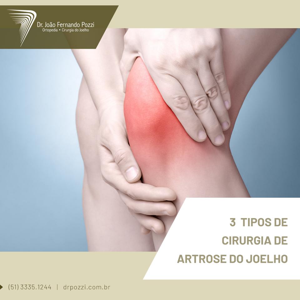cirurgia de joelho