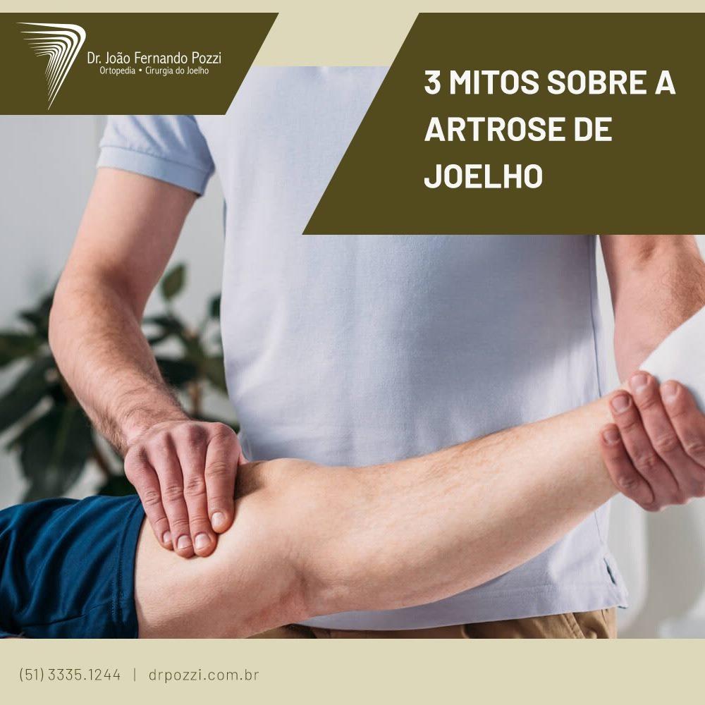 Mitos sobre a artrose