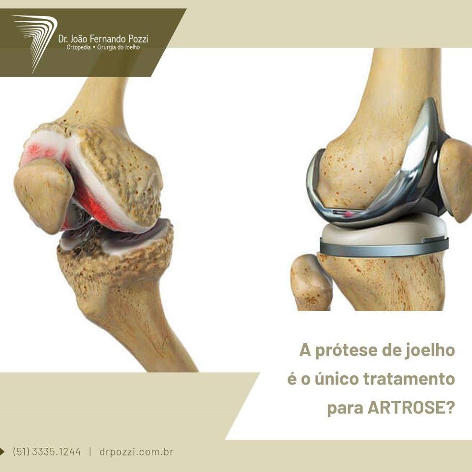 Prótese para artrose