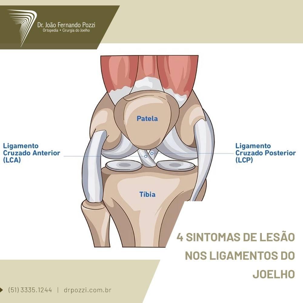 Lesões ligamentos joelhos
