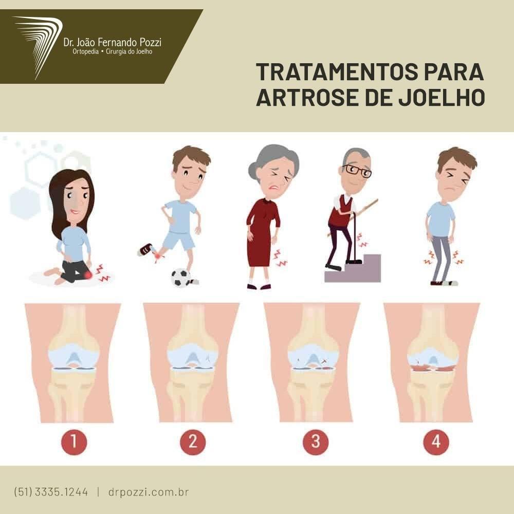 Veja os melhores tratamentos para cada fase da artrose